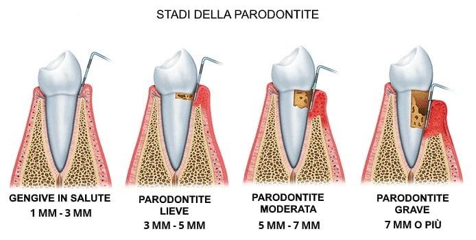 Carie e parodontite: i principali disturbi  del cavo orale per l'Oms