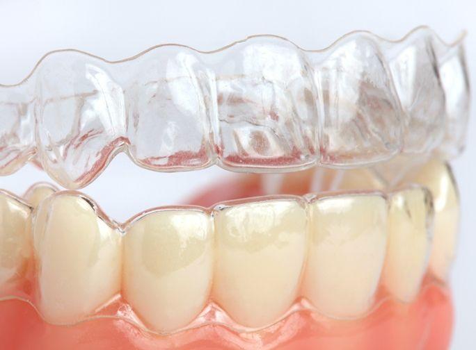 Easy Ortho Aligner, il modo semplice e trasparente per allineare i denti.