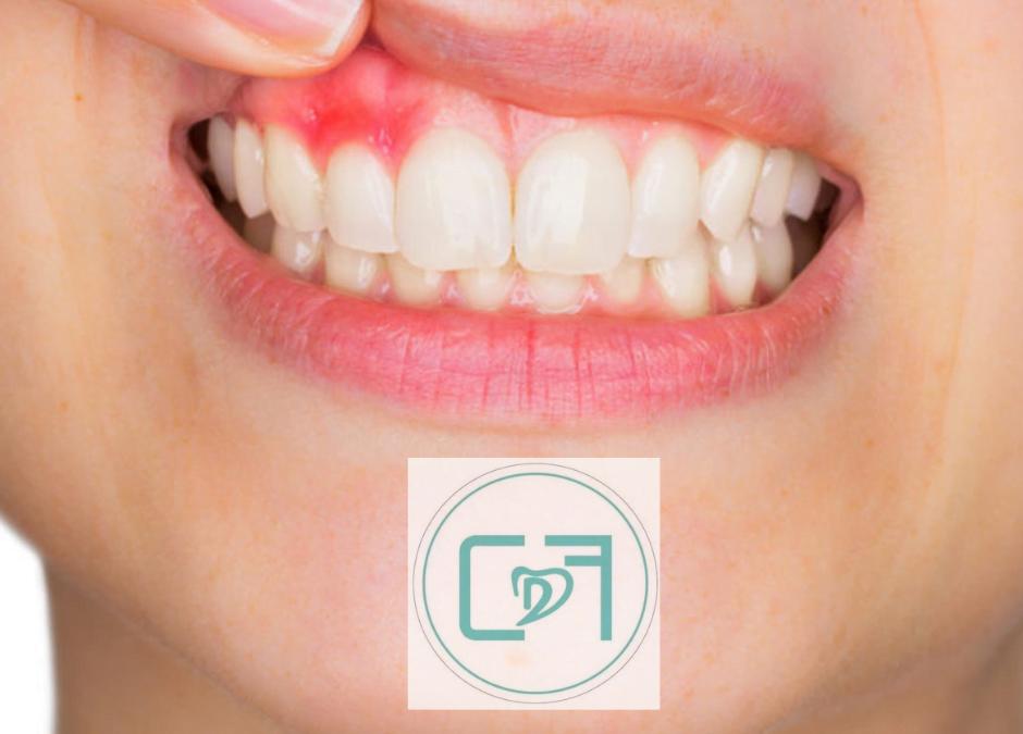 Gengivite o Parodontite?