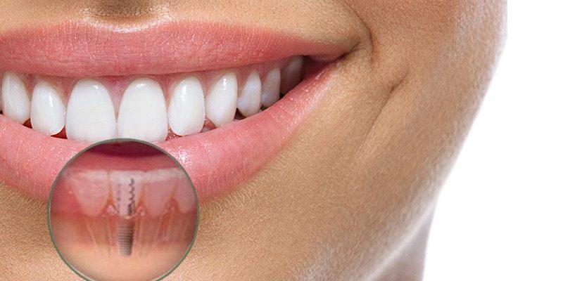 Impianti dentali: come prenderti cura di loro